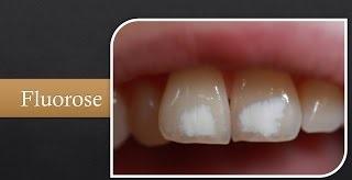 Fluorose auch white spots genannt